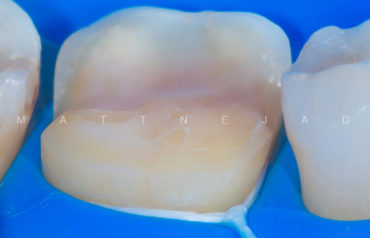 Biomimetic Dentistry Courses